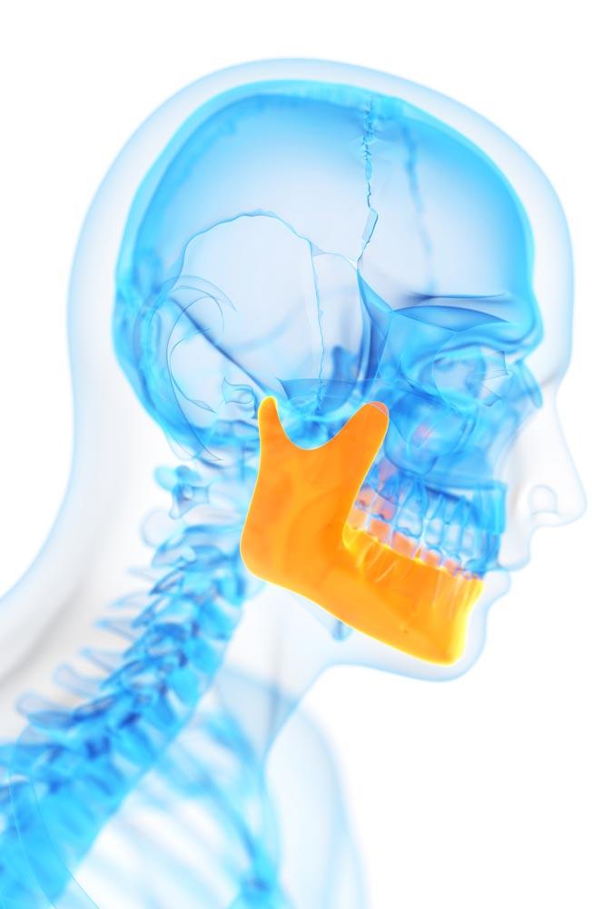 Bone Grafting in Menomonie